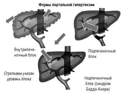Формы портальной гипертензии