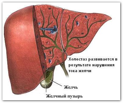 Холестаз внутрипеченочный