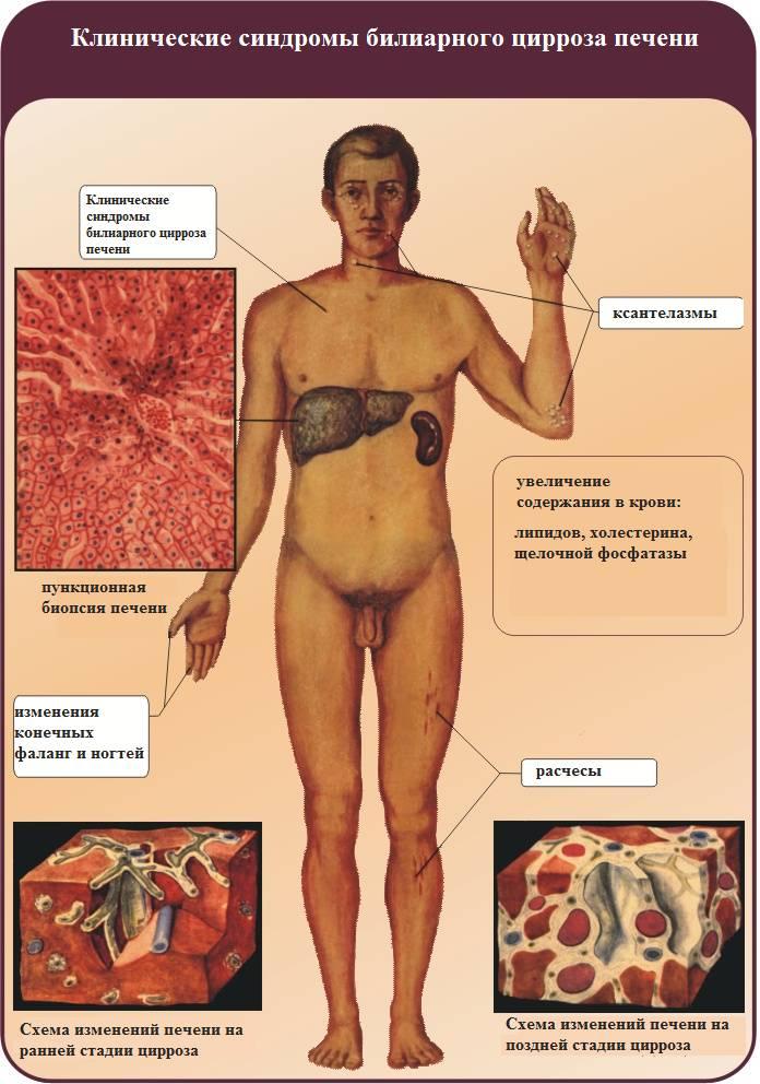 Клинические синдромы билиарного цирроза печени