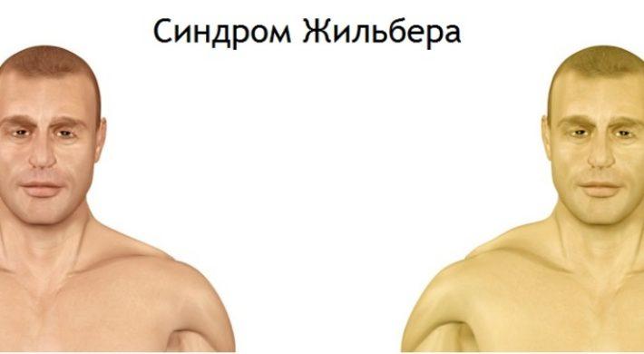 Главный симптом синдрома Жильбера