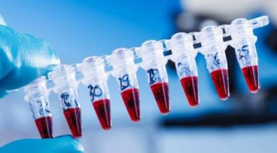 Анализ на вирусную нагрузку гепатита С