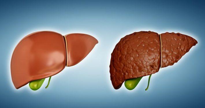 Здоровая печень и печень, пораженная циррозом