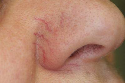 Расширение сосудистой сети на носу