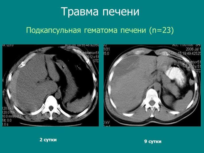 Гематома печени на МРТ