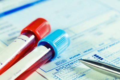 Анализ на гепатит С