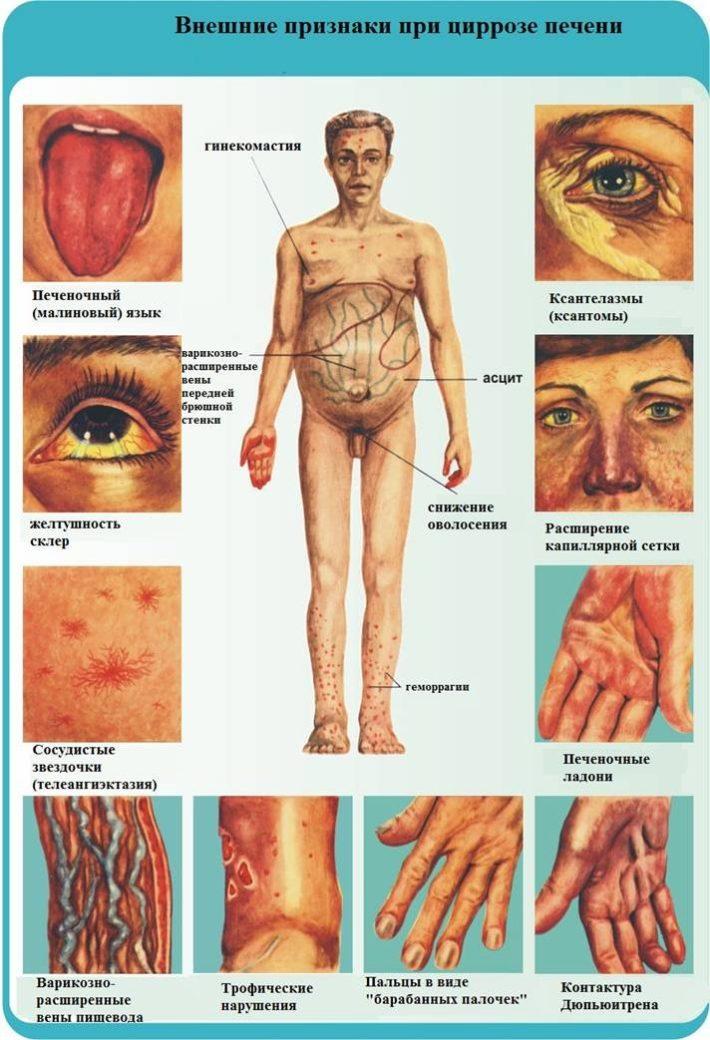 Внешние признаки при циррозе печени