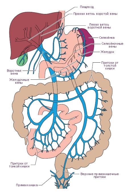 Тромбоз воротной вены