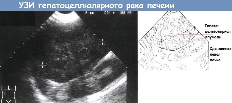 УЗИ гепатоцеллюлярного рака