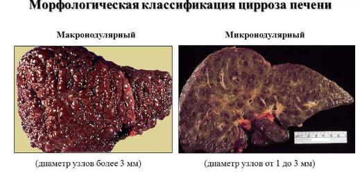 Морфологическая классификация цирроза печени