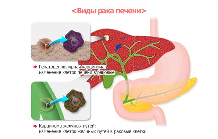 Виды рака печени