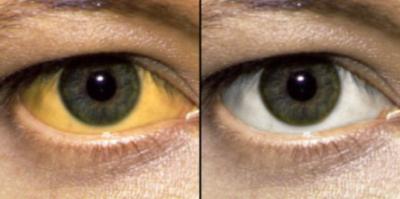 Пожелтение склеры глаз