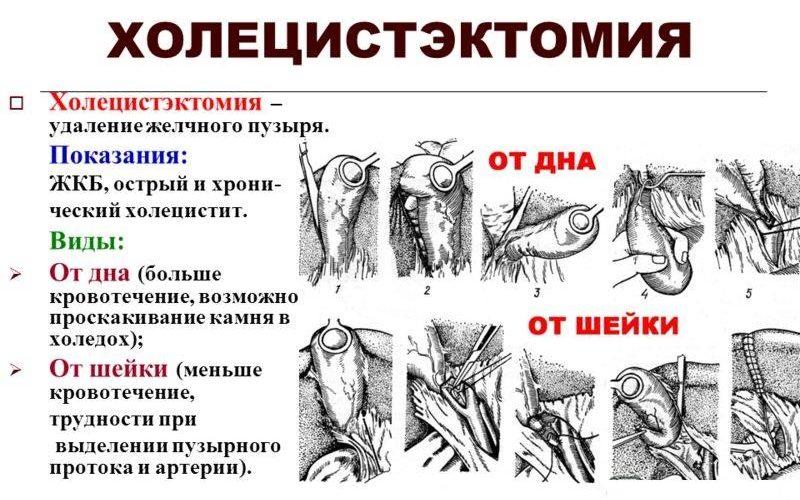 Холецистэктомия