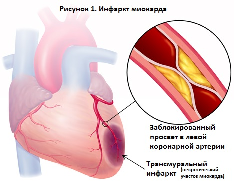 Острый инфаркт