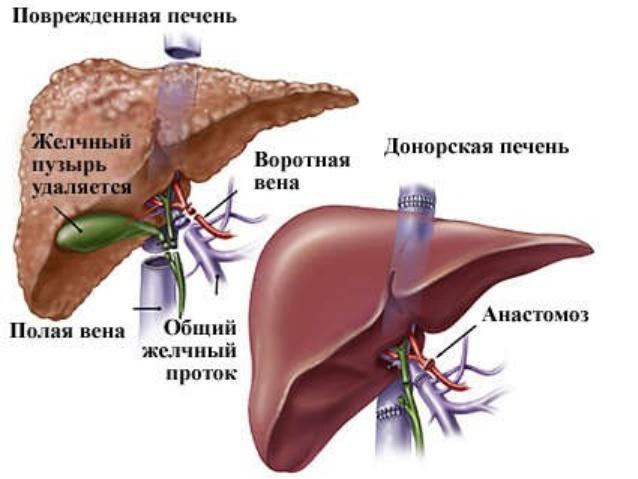 Пересадка