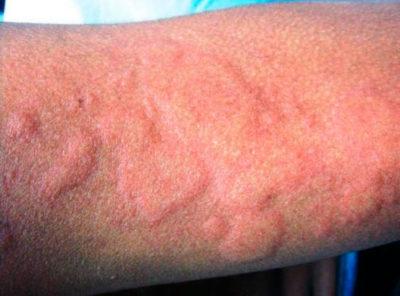 Аллергическая крапивница