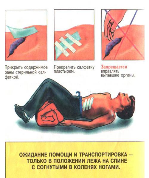 Первая помощь при травмах живота