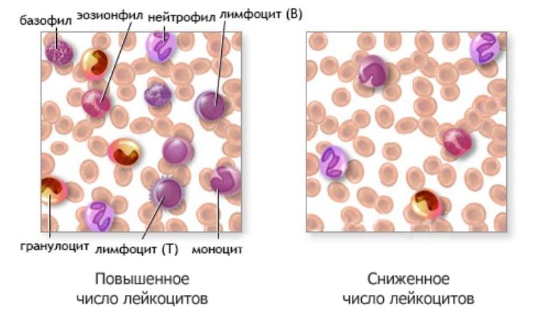 Лейкопения и лейкоцитоз