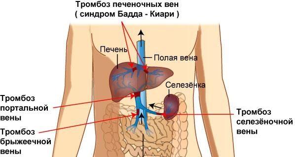 Обструкция печеночных вен