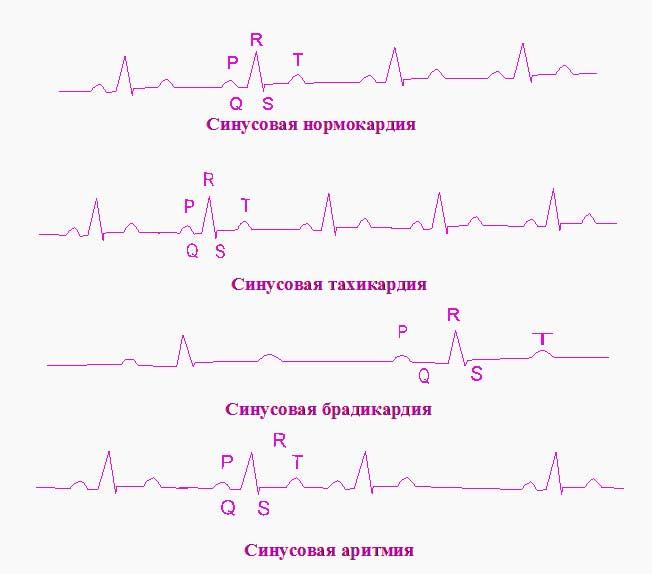 Виды разлада сердечного ритма
