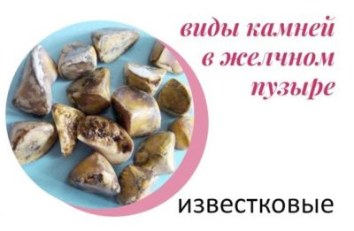 Пигментно-известковые камни