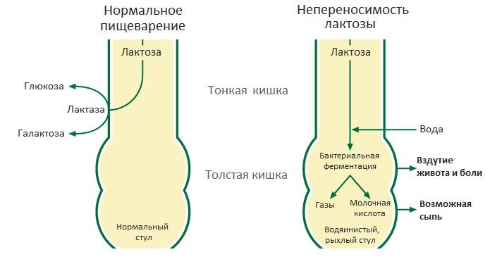 Непереносимость лактозы