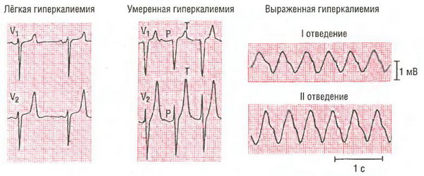 Гиперкалиемия на ЭКГ