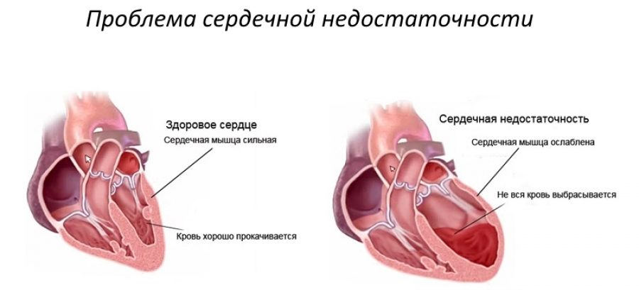 Острая сердечно-сосудистая недостаточность
