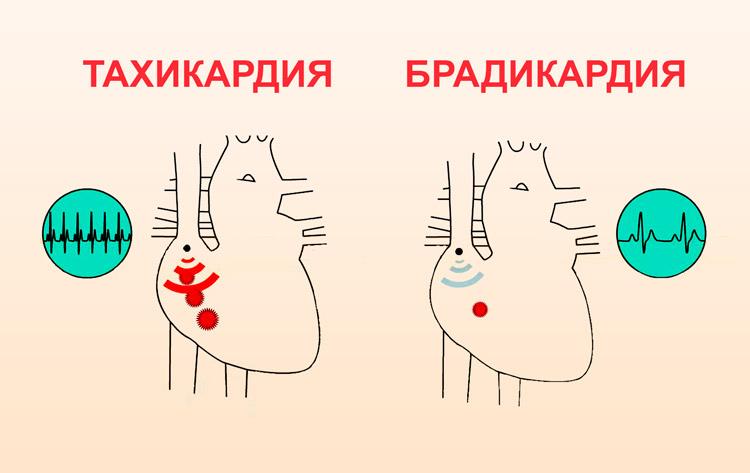 Брадикардия и тахикардия