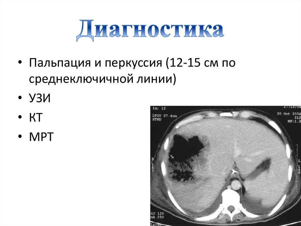 Диагностика гепатомегалии