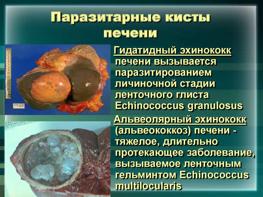 Паразитарные кисты