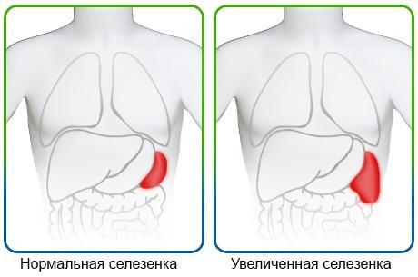 Диффузные перестройки в селезенке
