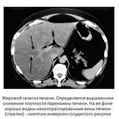Жировой гепатоз на КТ