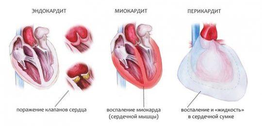 Виды сердечных заболеваний