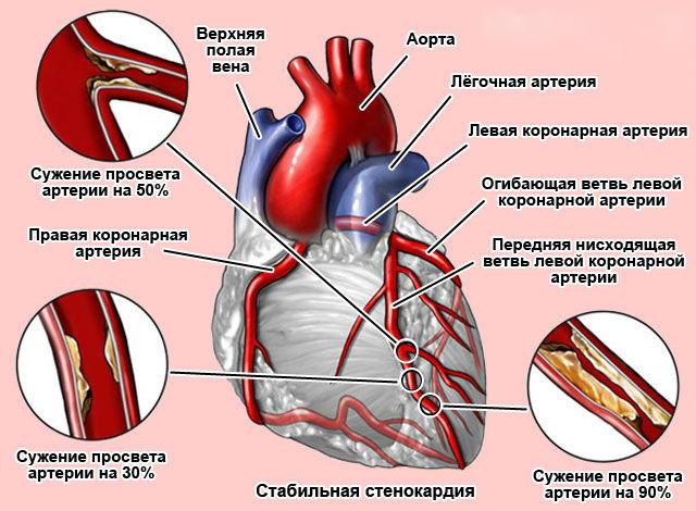 Cтабильная стенокардия