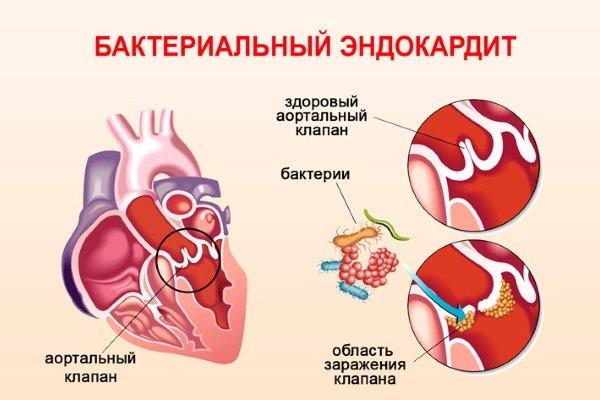 Эндокардит бактериальный