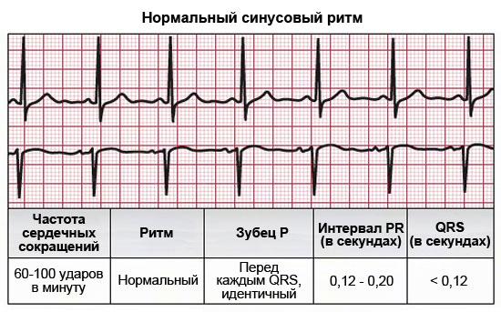 Нормальные показатели работы сердца