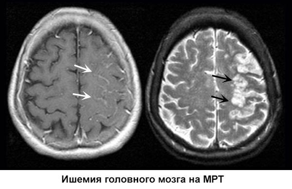 Ишемия на МРТ