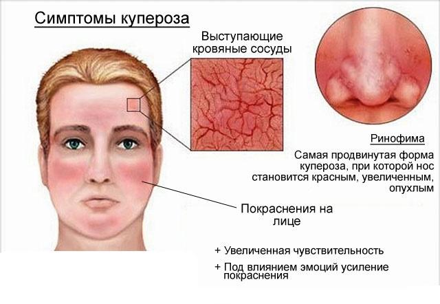 Купероз лица