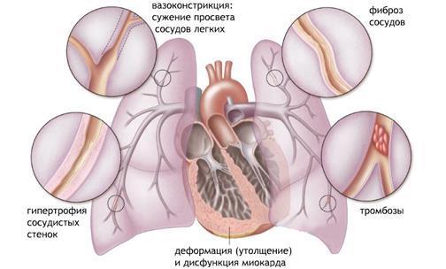 Физиология заболевания