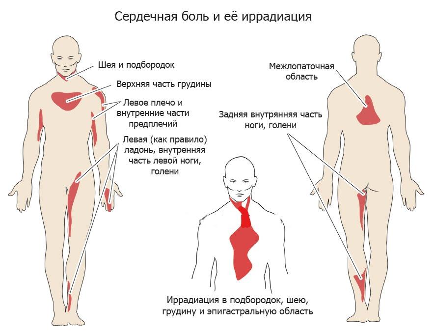 Места иррадиации сердечной боли