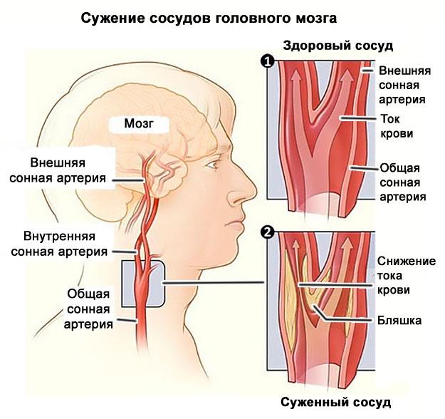 Стеноз сосудов мозга