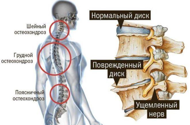 Виды остеохондроза