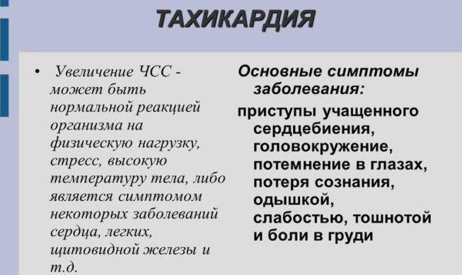 Тахикардия