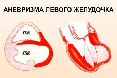 Ослабление стенки левого желудочка