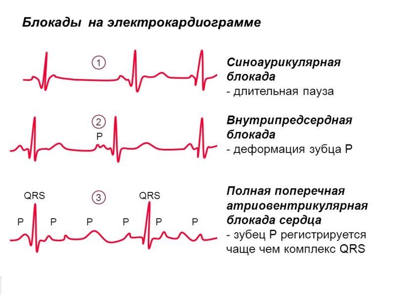Блокады сердца на ЭКГ