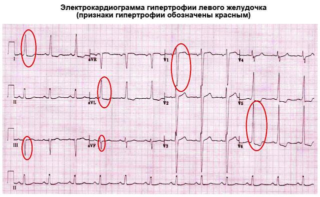 Гипертрофия ЛЖ на ЭКГ
