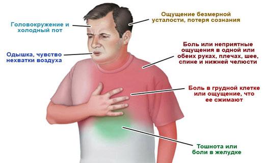 Признаки миокардита