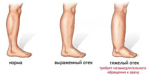 Отечность ног при ХСН