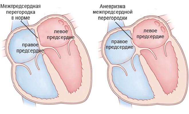 Проявление аномалии в сердечной перегородке
