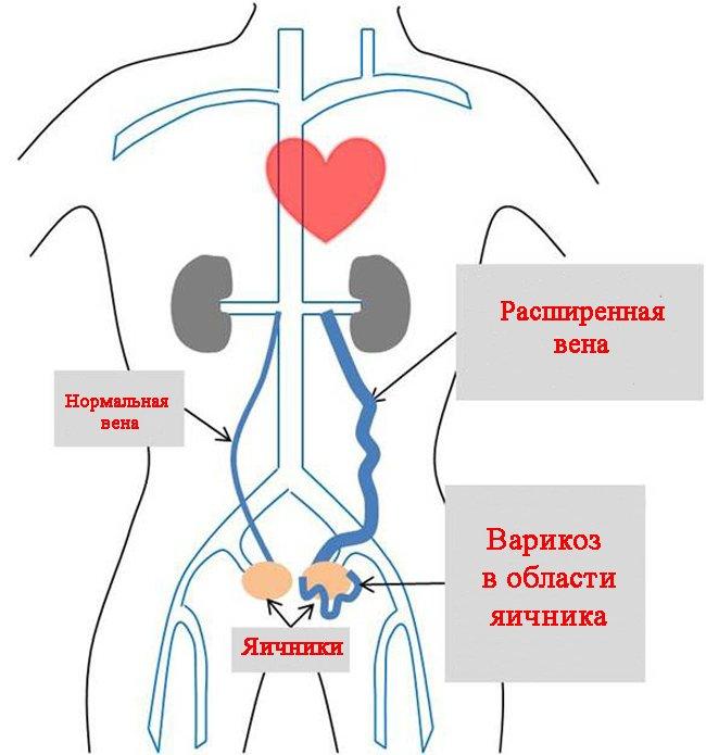 Варикоз органов малого таза